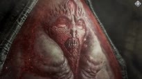 Unfassbar eklig - Das Horror-Spiel Scorn